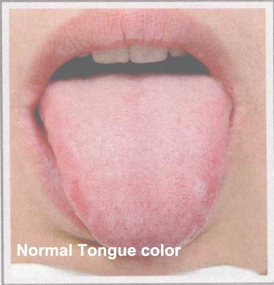 normal tongue color - 28 images - the gallery for gt ...